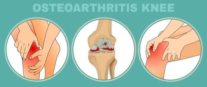 Osteoarthritis treatment in Ayurveda