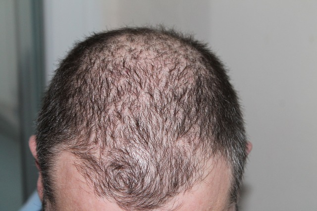 laser light therapy for hair loss reviews